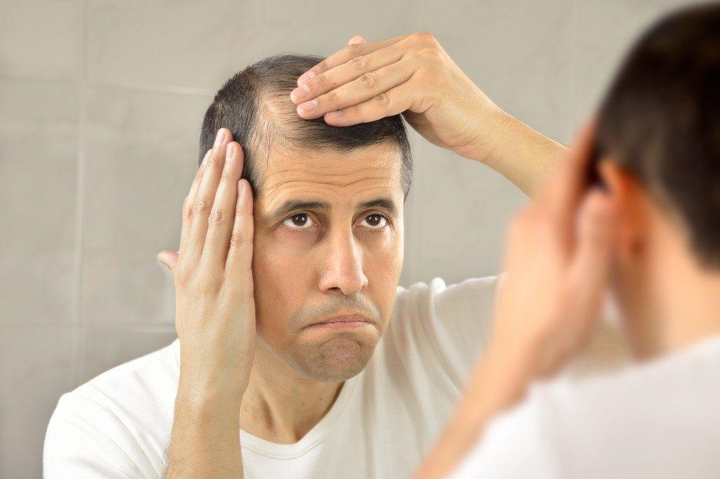 hair loss problem