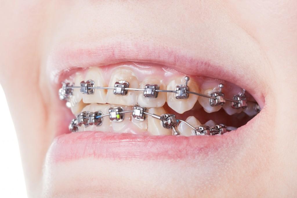 kids teeth with braces
