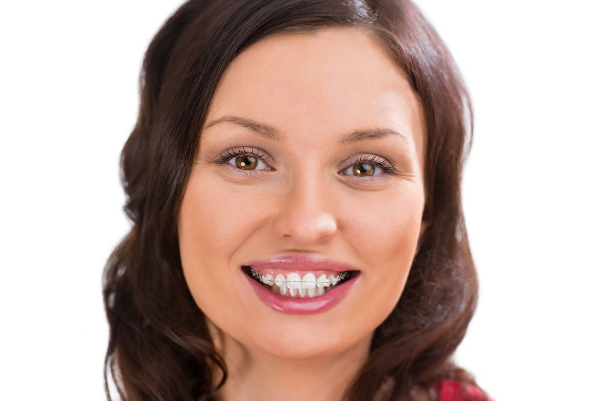 woman smiling clear braces