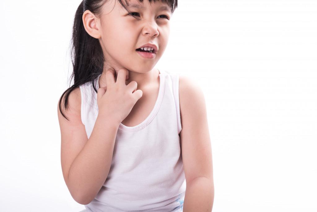 child scratching herself