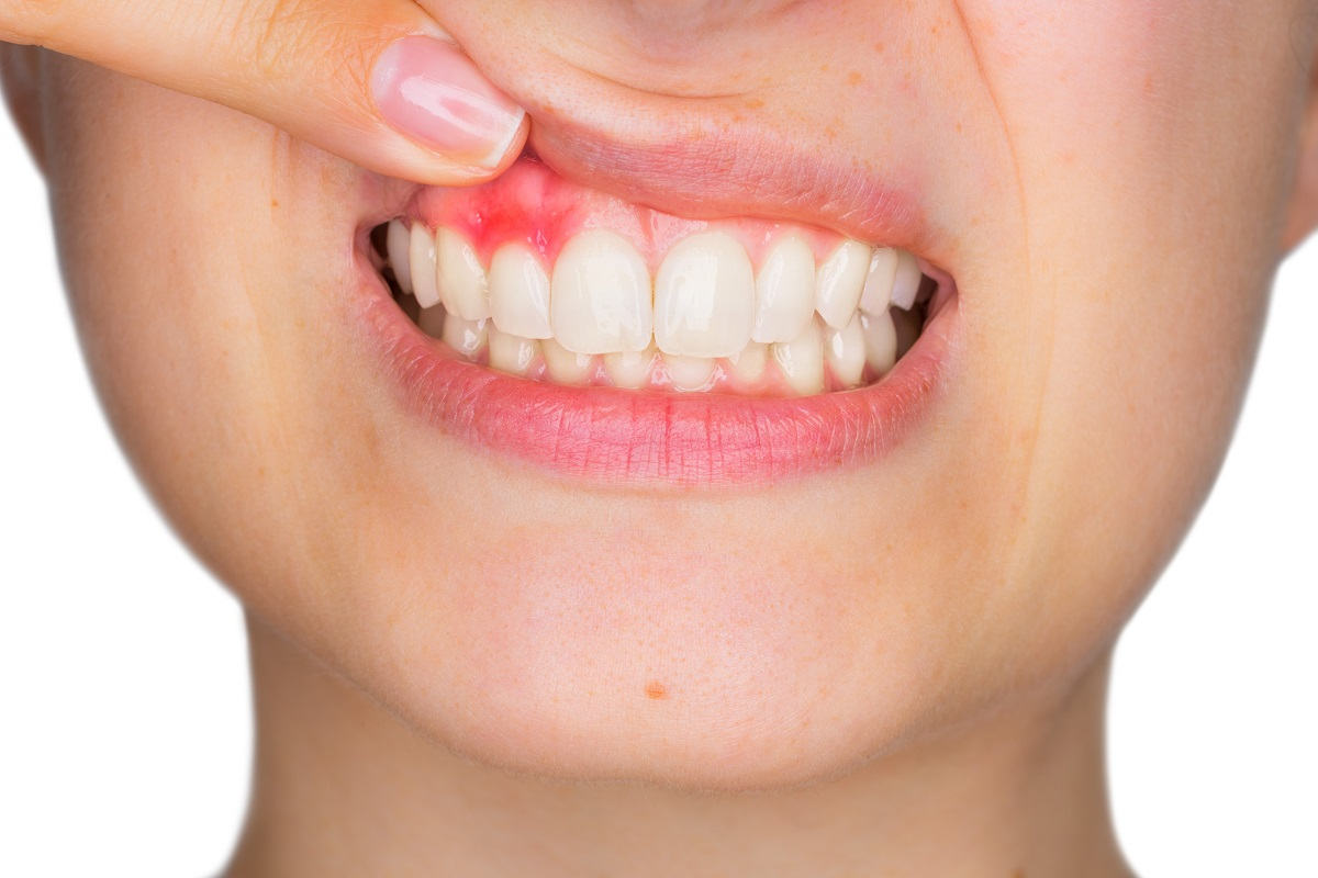 Unsure if you have gum disease? 5 tell-tale signs to look out for